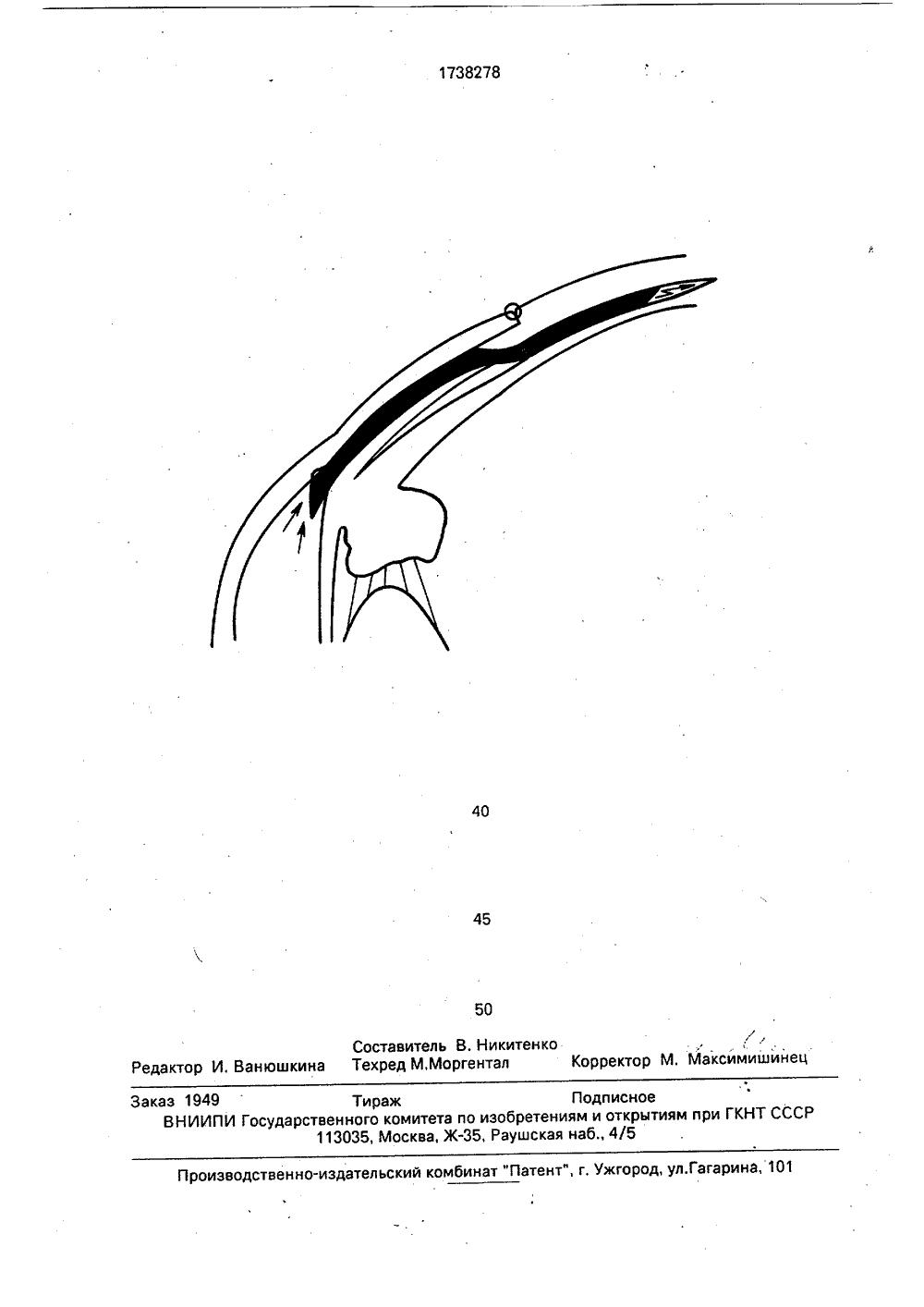 Циклодиализ
